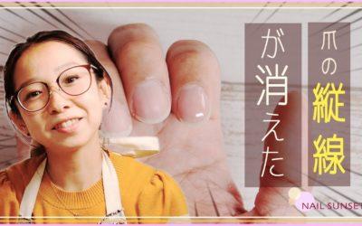 【ネイルケア】爪の縦線って気になる?こうすると気にならなくなります。